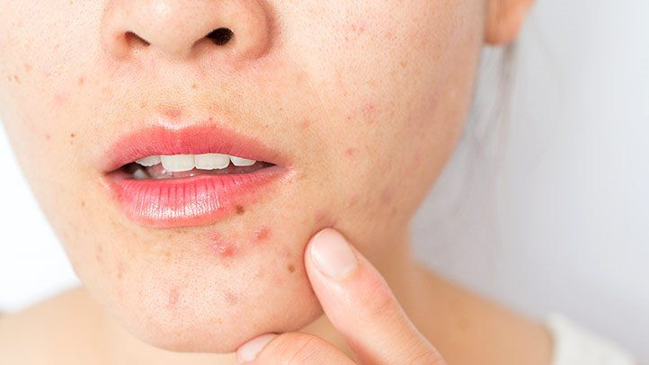 How To Cure Acne At Home? DIY Guide